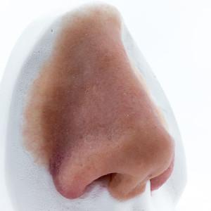 Nasenepithese