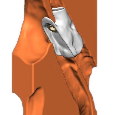 Fistelverschluss