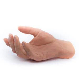 Institut für Anaplastologie –Handepithese und Fingerepithesen