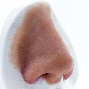 Institut für Anaplastologie –Nasenepithese